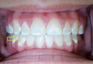 لک دندان بعد از ارتودنسی