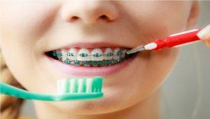 مسواک زدن دندان همراه با براکت ارتودنسی