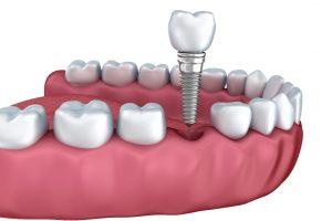 هزینه های دندان پزشکی- ایمپلنت دندان
