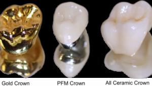 مواد اولیه دندانپزشکی2