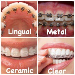 هزینه های دندان پزشکی- ارتودنسی دندان