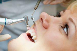 هزینه های دندان پزشکی- جرم گیری