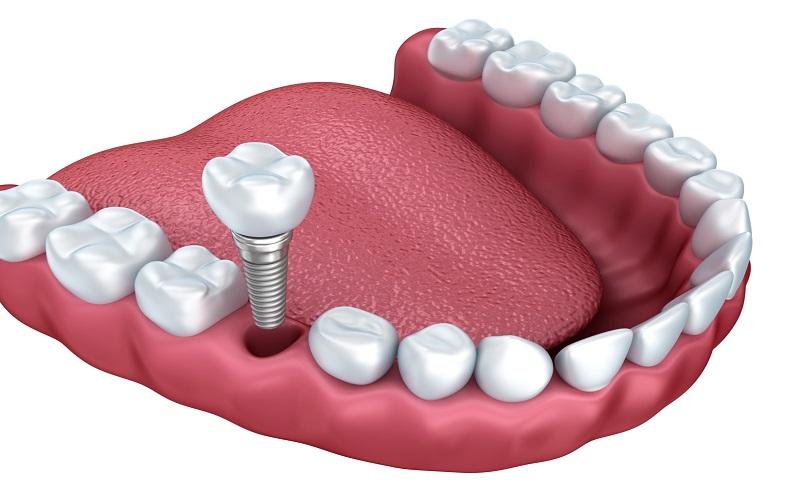 از کشیدن دندان تا ایمپلنت