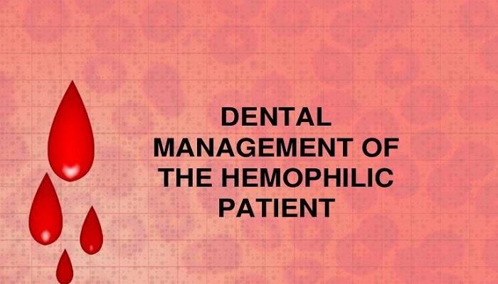 بیماری هموفیلی و بیماری های دهان و دندان
